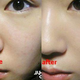 Quy trình chăm sóc da mụn dành cho da hỗn hợp thiên dầu
