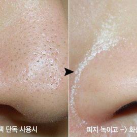 Cách sử dụng miếng dan lột mụn để tránh gây hại cho da